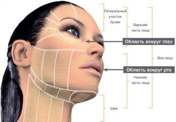 Подтяжка верхней трети лица